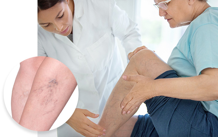 Spider Vein Treatment Service Photo2