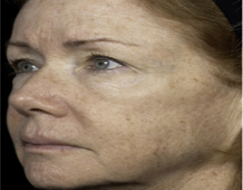 Aging Skin patient after photo