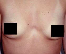 Breast Augmentation patient before photo