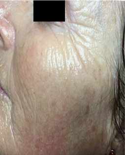 Microneedling  patient after photo