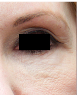 Microneedling patient before photo