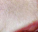 Laser Hair Removal patient after photo