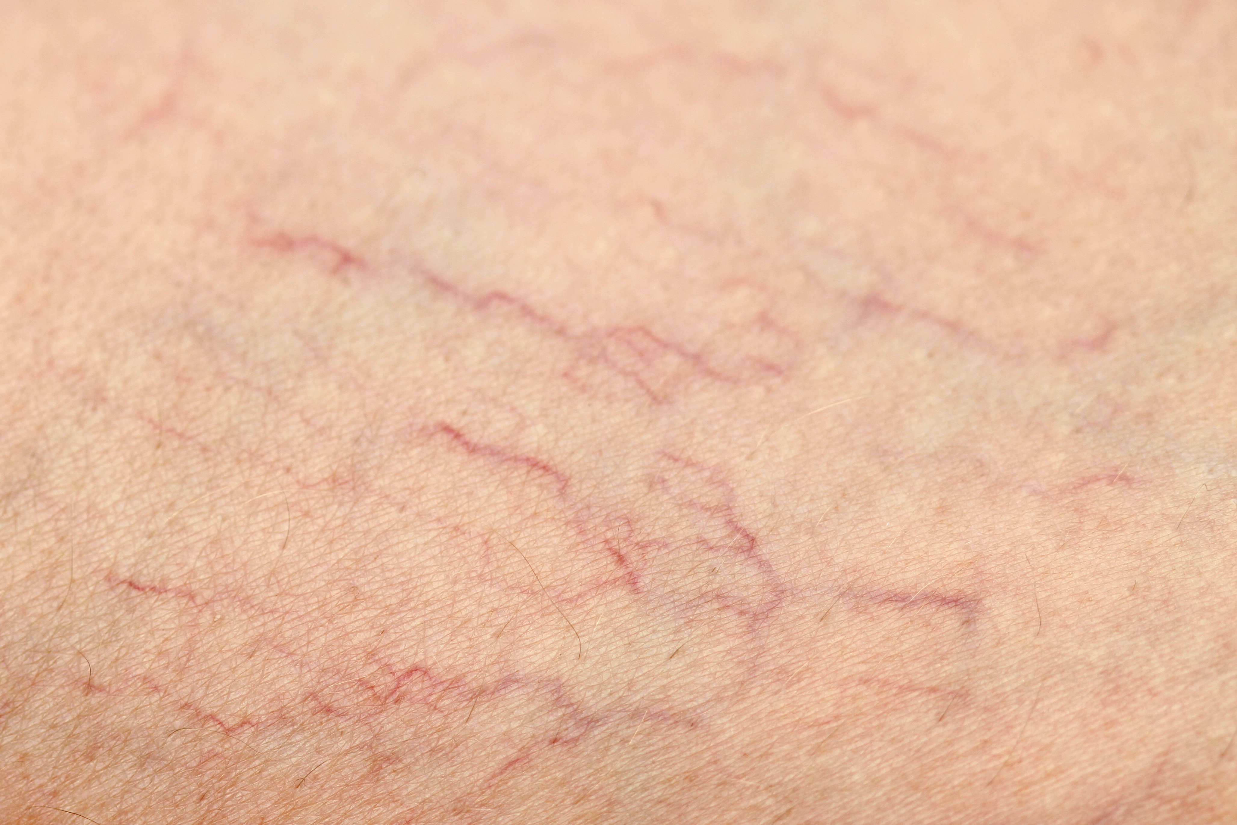 Spider Vein Treatment Service Photo3