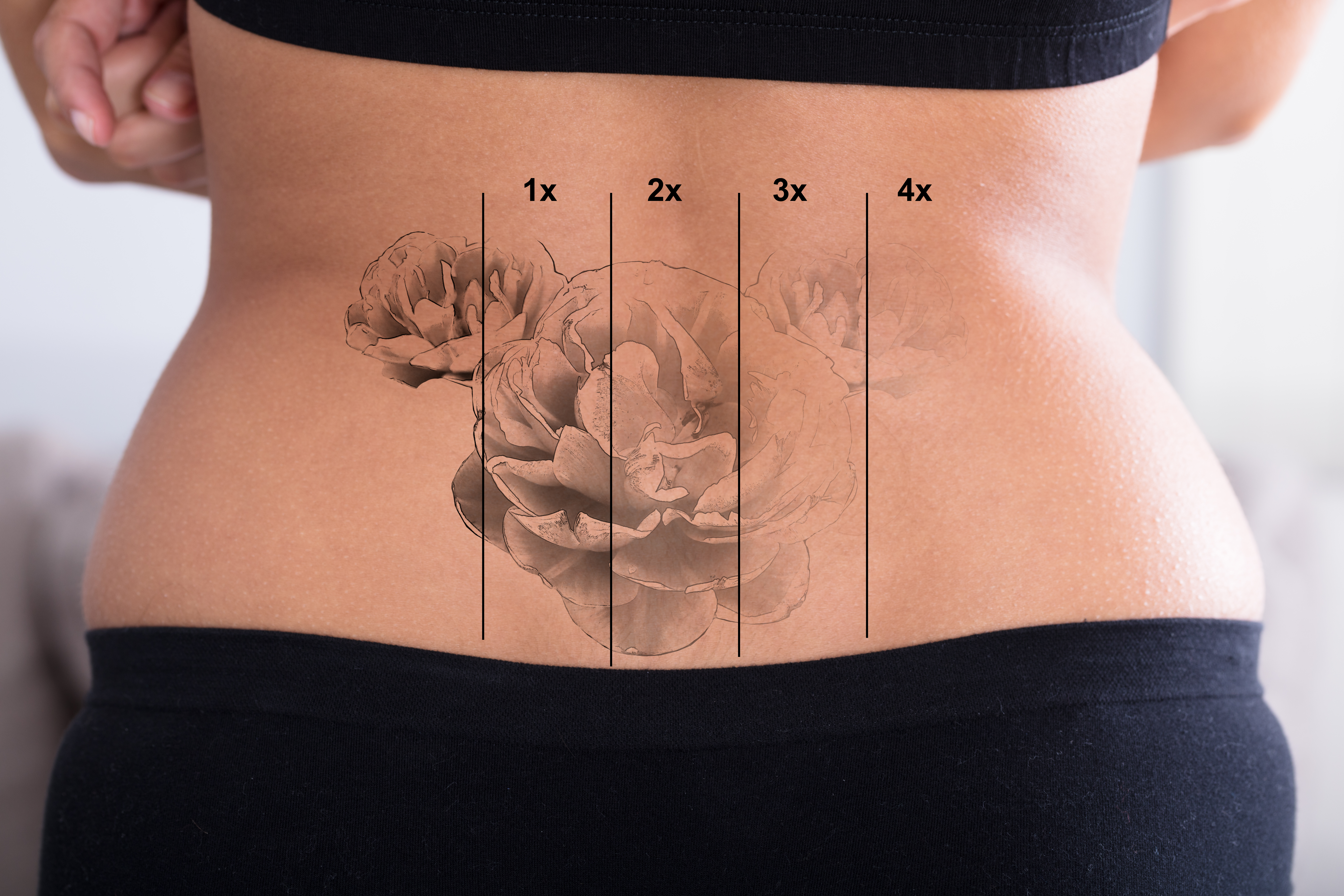 Tattoo Removal Service Photo3