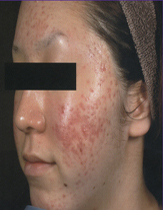 Intensif Microneedle Treatment patient before photo