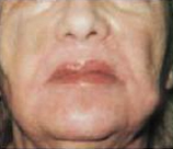 Laser Skin Resurfacing patient after photo