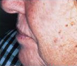 Laser Skin Resurfacing patient before photo
