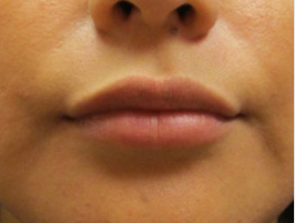 Restylane patient after photo