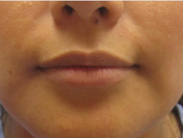 Restylane patient before photo