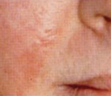 Microdermabrasion patient before photo