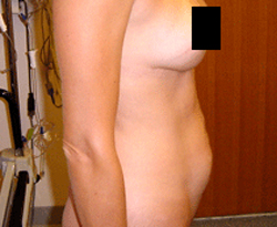 Tummy Tuck patient before photo