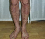 Psoriasis patient after photo