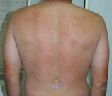 Psoriasis patient before photo