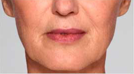 Restylane Refyne patient before photo