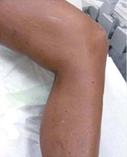 Spider Vein Treatment patient after photo
