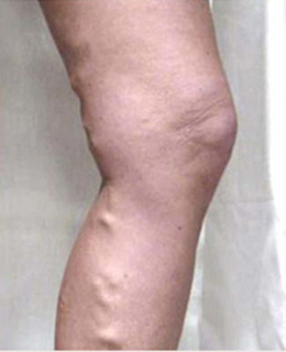 Spider Vein Treatment patient before photo