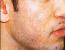 Scar Removal patient before photo
