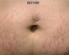 Stretch Marks patient before photo