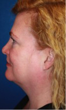 ThermiRF patient before photo