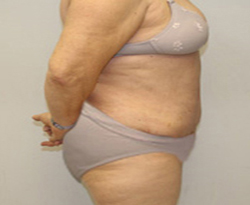 Tummy Tuck patient after photo
