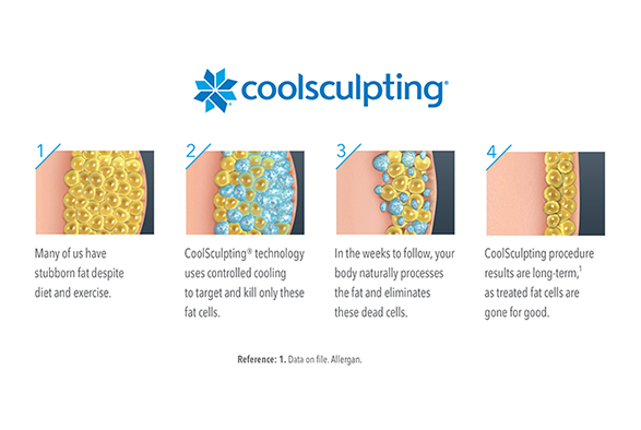 CoolSculpting West Islip, Suffolk County Service Photo4
