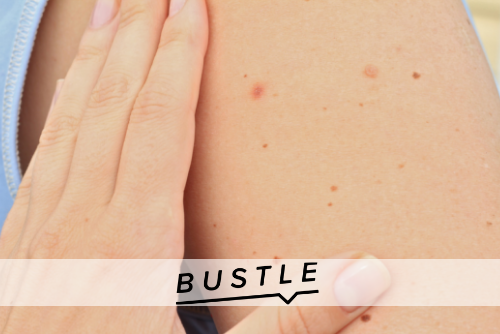 6 Types Of Moles You Should Never Ignore