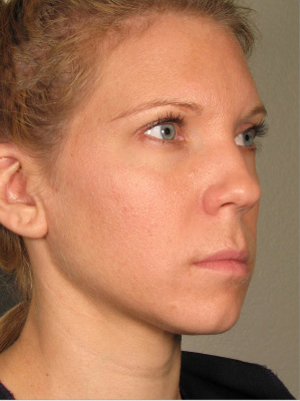 Ultherapy  patient after photo