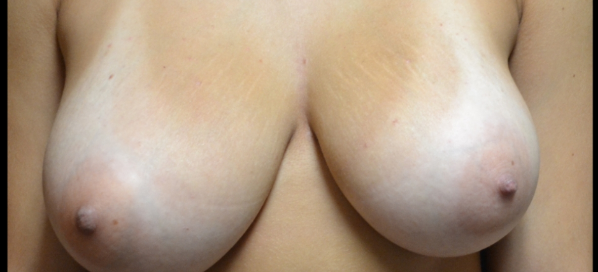 Breast Reduction 1 Patient1 Set1 Before Page