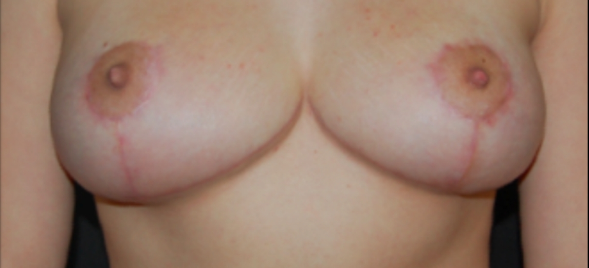 Breast Reduction 1 Patient1 Set1 After Page
