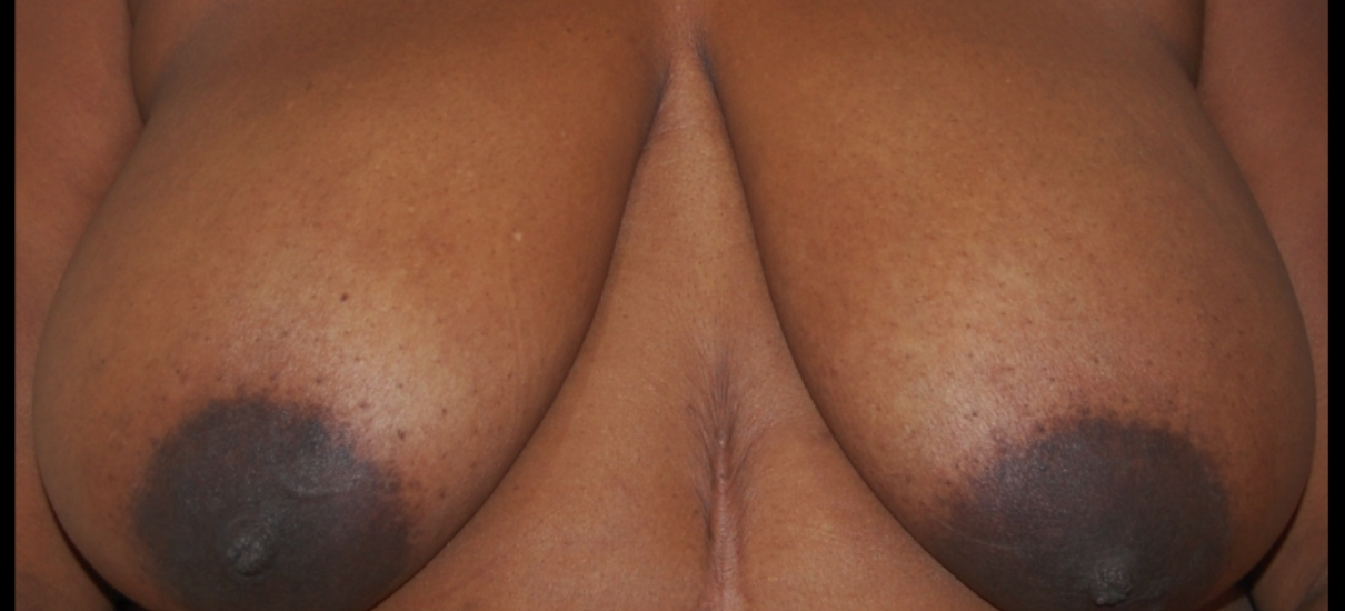 Breast Reduction 4 Patient1 Set1 Before Page