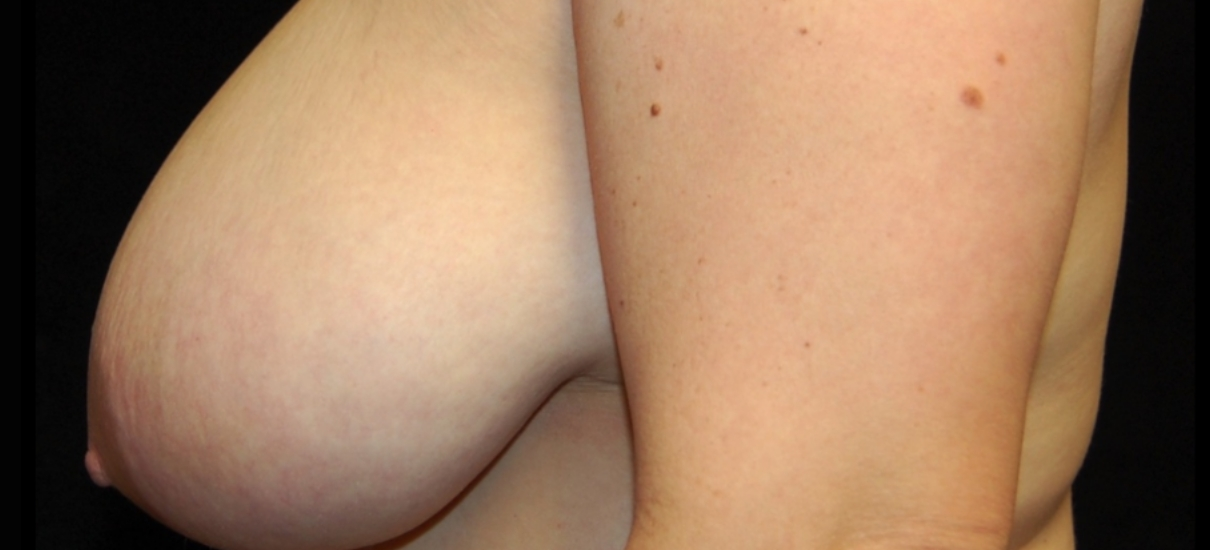 Breast Reduction 8 Patient1 Set1 Before