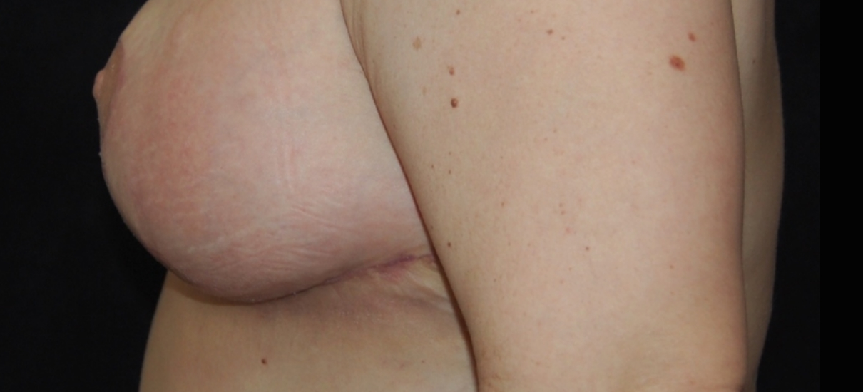 Breast Reduction 8 Thumbnail