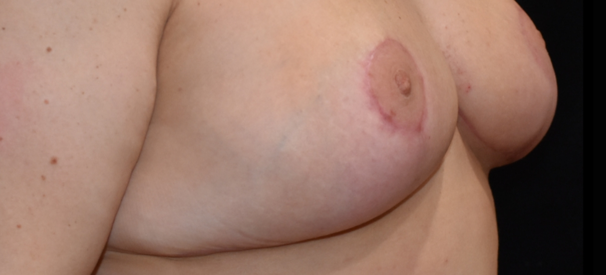 Breast Reduction 9 Patient1 Set1 After Page
