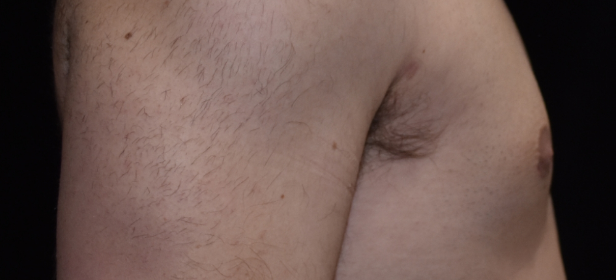 Gynecomasia Excision 1 Patient1 Set1 After