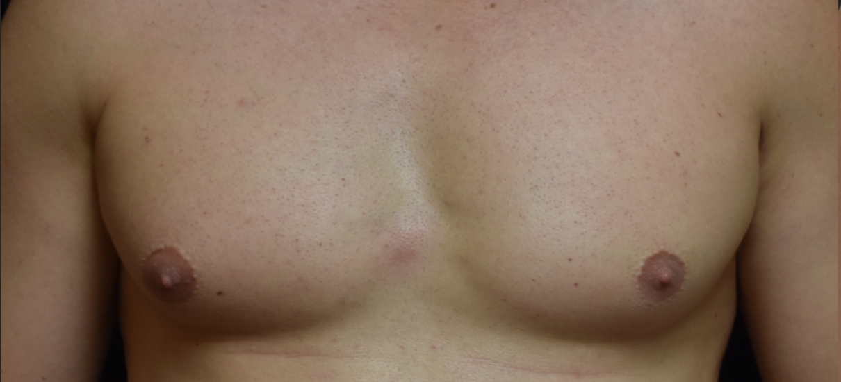 Men – Gynecomastia Service Photo5