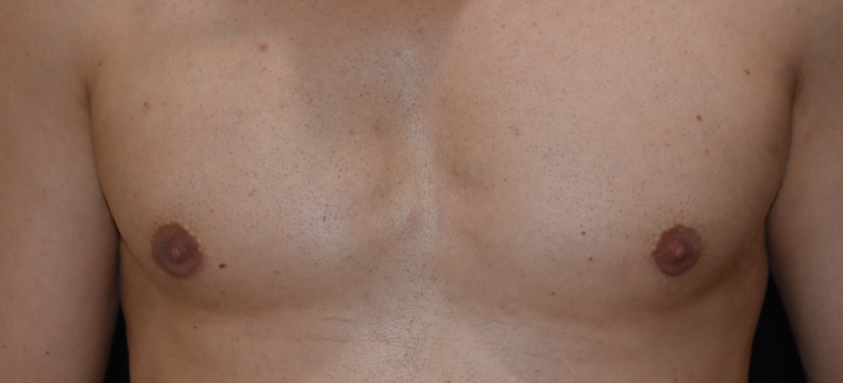 Gynecomasia Excision 3 Patient1 Set1 After