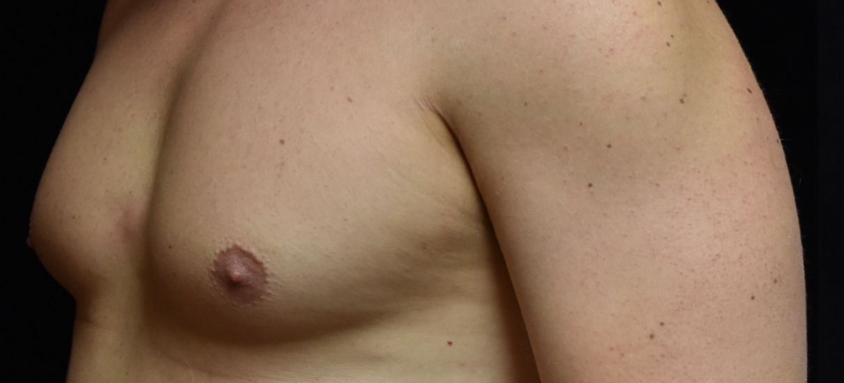Men – Gynecomastia Service Photo3