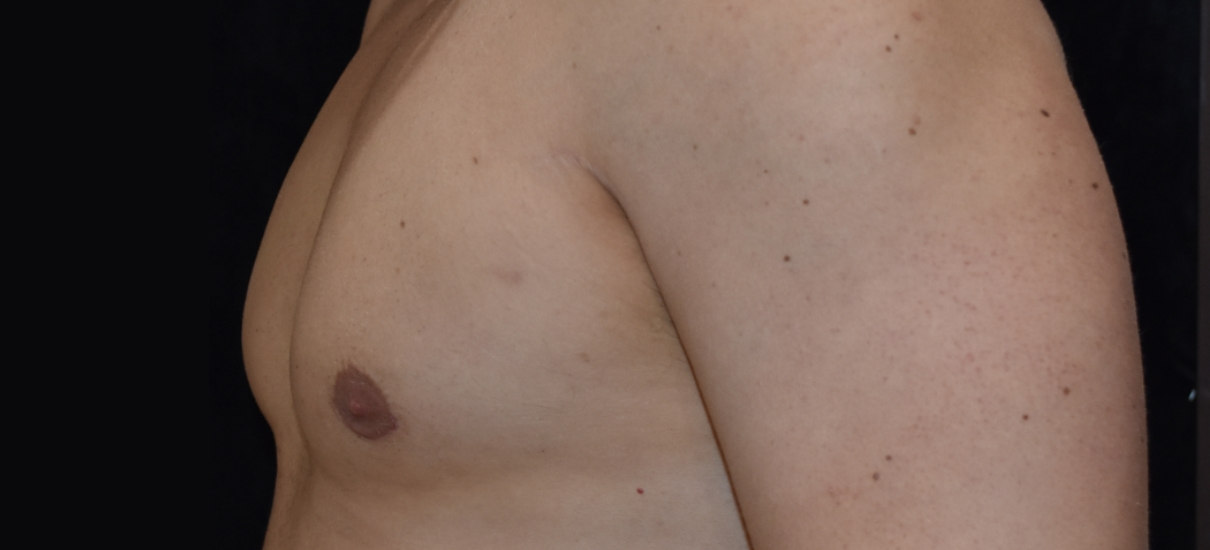 Gynecomasia Excision 4 Patient1 Set1 After