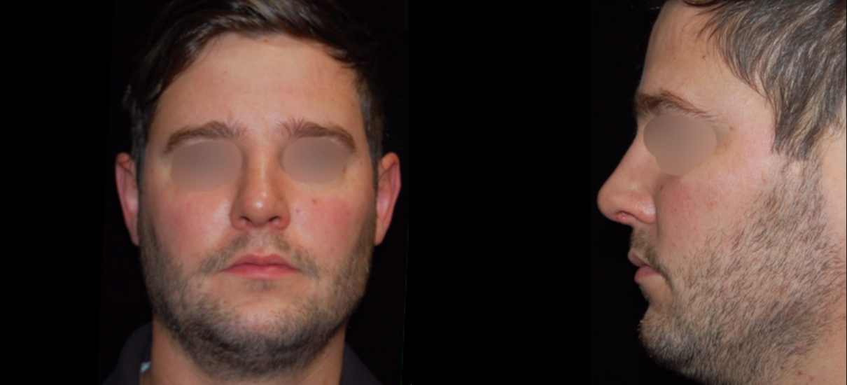 Rhinoplasty 1 Patient1 Set1 After Page