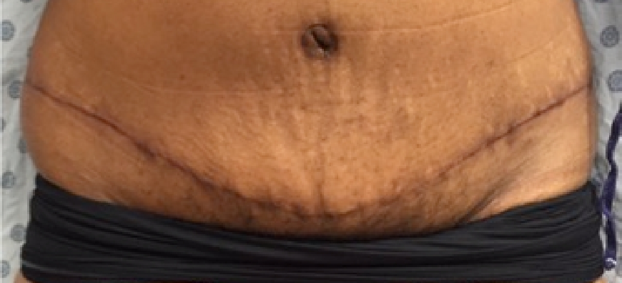 Tummy Tuck 2 Patient1 Set1 After