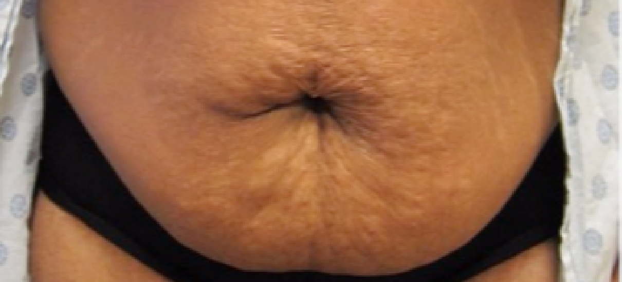 Tummy Tuck 2 Patient1 Set1 Before