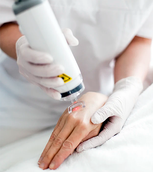 Best Laser Treatments to do During Winter