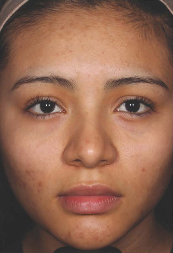 Aczone gel woman patient after photo