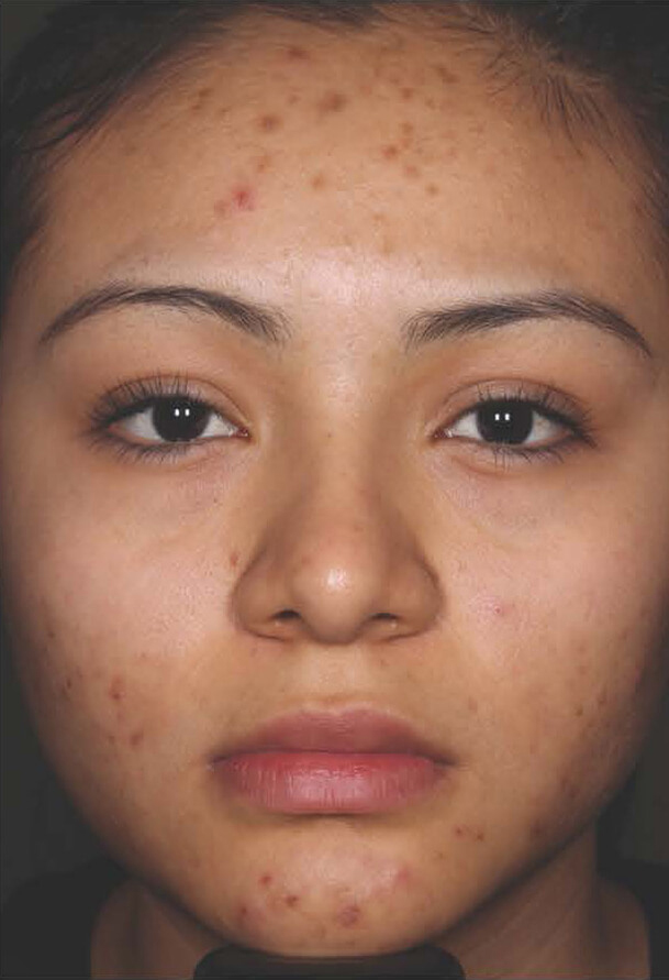 Aczone gel woman patient before photo