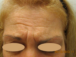 Botox Patient1 Set1 Before