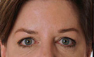 Botox 4 Patient1 Set1 After