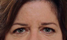 Botox 4 Patient1 Set1 Before