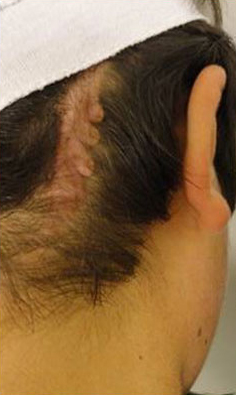 KELOID SCARS patient after photo