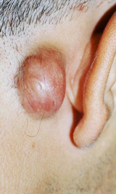 KELOID SCARS patient before photo