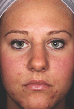 Acne Treatment Patient 1 Patient1 Set1 Before